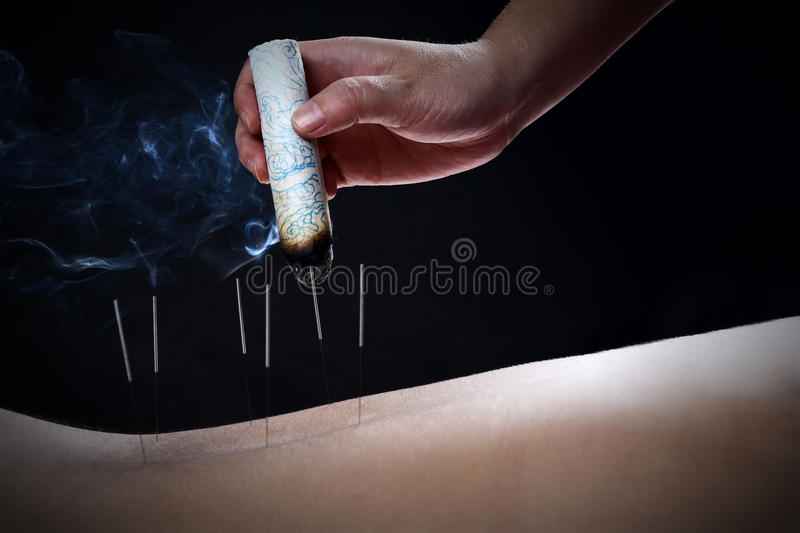 This image has an empty alt attribute; its file name is acupuncture-moxibustion-traditional-chinese-medicine-method-therapy-form-alternative-image-www.sunblestproducts.com_.jpg